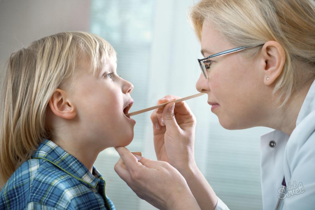 Лечение ларингита у детей: принципы, первая помощь при приступах ложного крупа