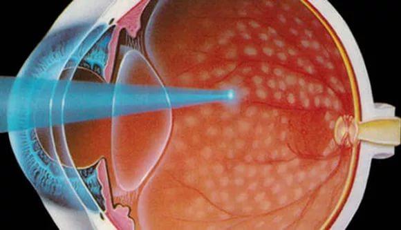 Операция на сетчатке глаза после сахарного диабета