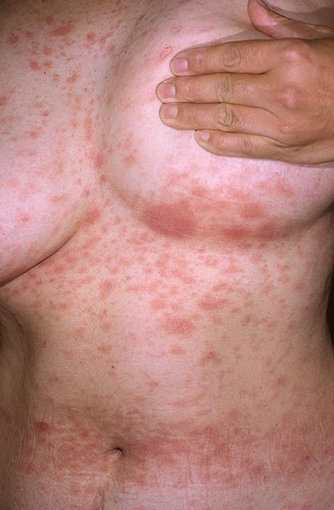 аллергия у мужчин