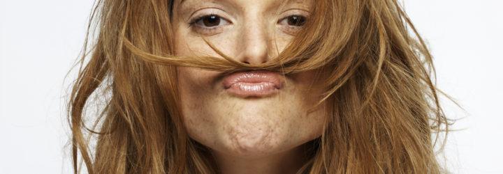 если много волос на теле у мужчин