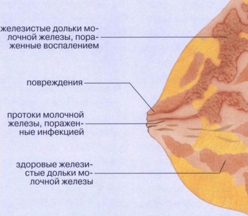 Крем для увеличения грудных желез. Рейтинг Топ-7