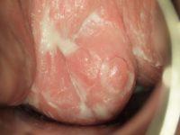 Молочница у женщин, вид при гинекологическом осмотре