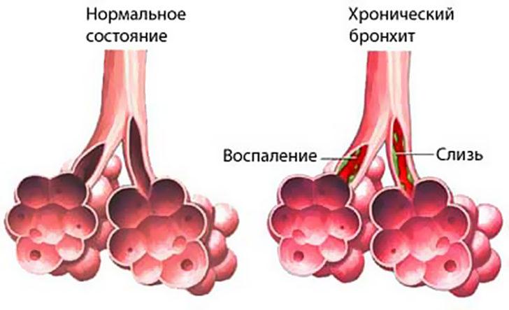 Нормальное состояние легких и внешний вид при хроническом бронхите, схема