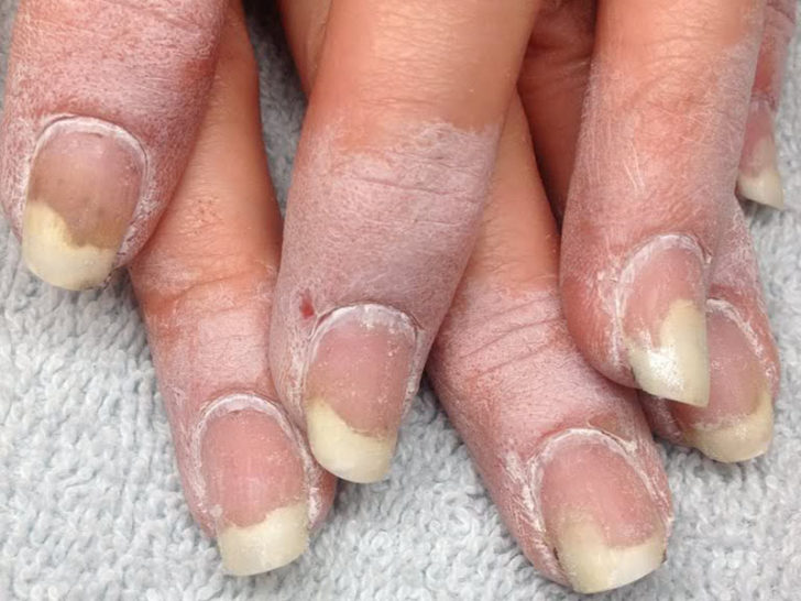 Какое средство помогает от грибка ногтей на ногах