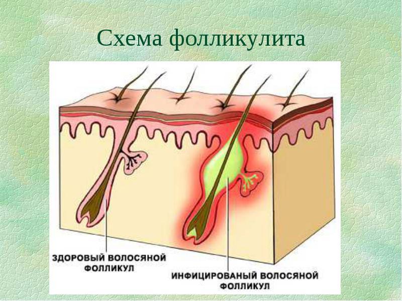 Эндартериит  что это такое лечение причины симптомы