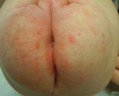 Пеленочный дерматит фото