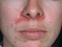 Пероральный дерматит с локализацией в зоне носа