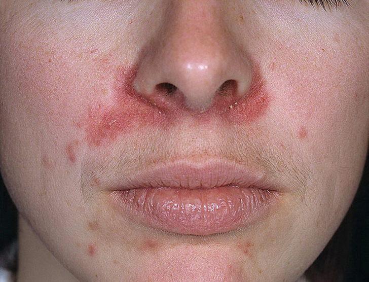 медикаментозная аллергия лечение