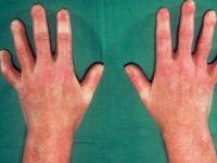 Отёк пальцев