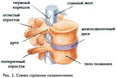 Секвестрация грыжи межпозвоночного диска причины симптомы и лечение