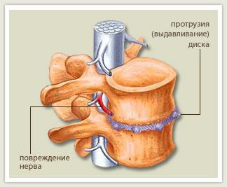 Лечение протрузии дисков шейного отдела позвоночника медикаментозное лечение