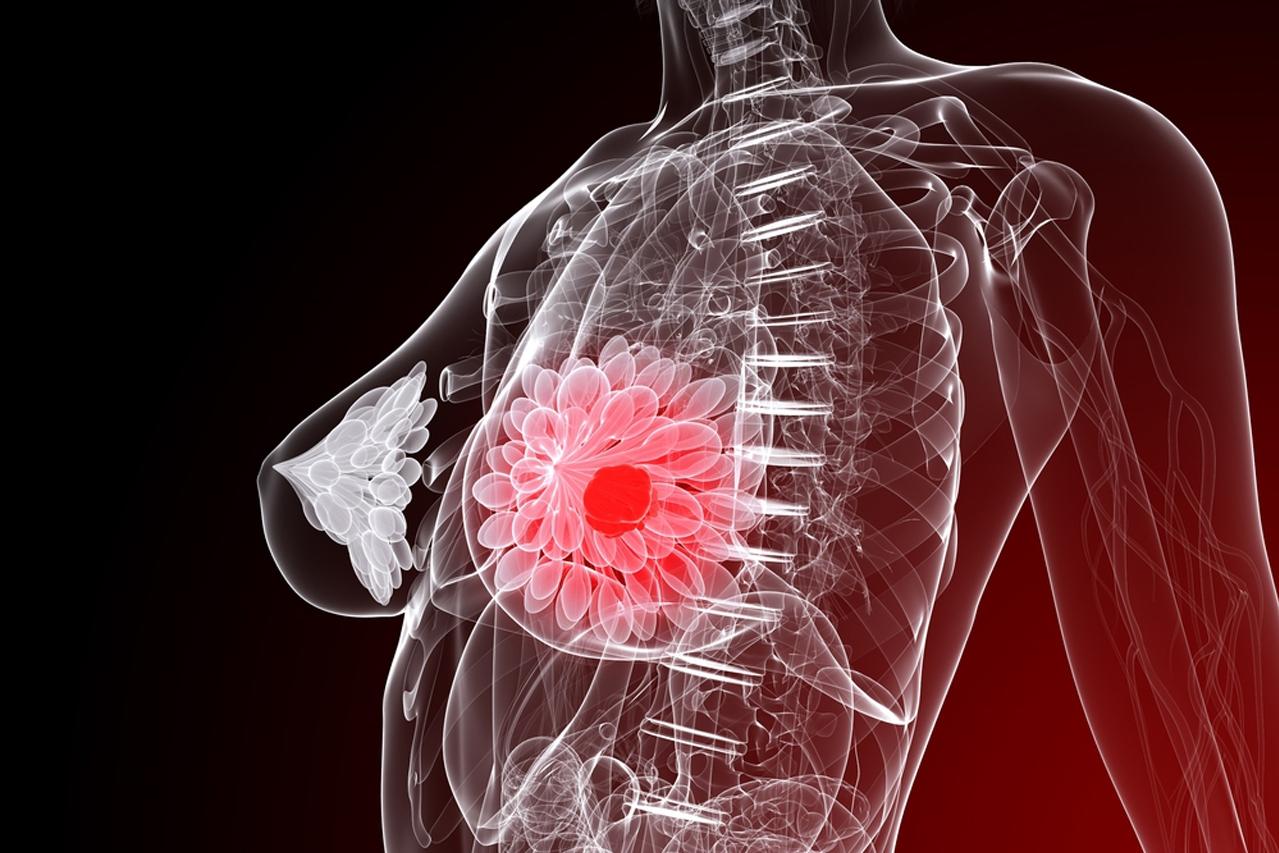 Рак молочной железы III степени: жизнь продолжается!