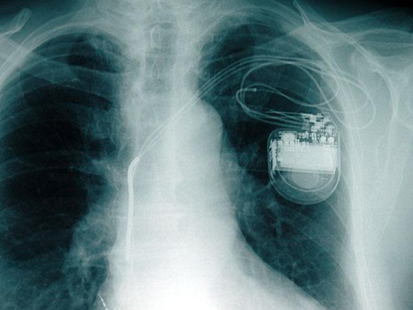 Рентгеновский снимок человека с ЭКС