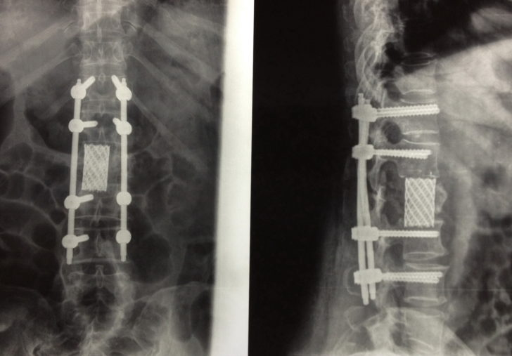 Рентгеновское изображение позвоночника после вертебропластики