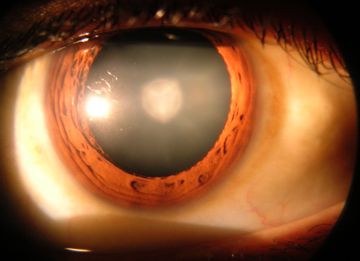 Воспаление сетчатки глаза (ретинит): разнообразные причины и проявления