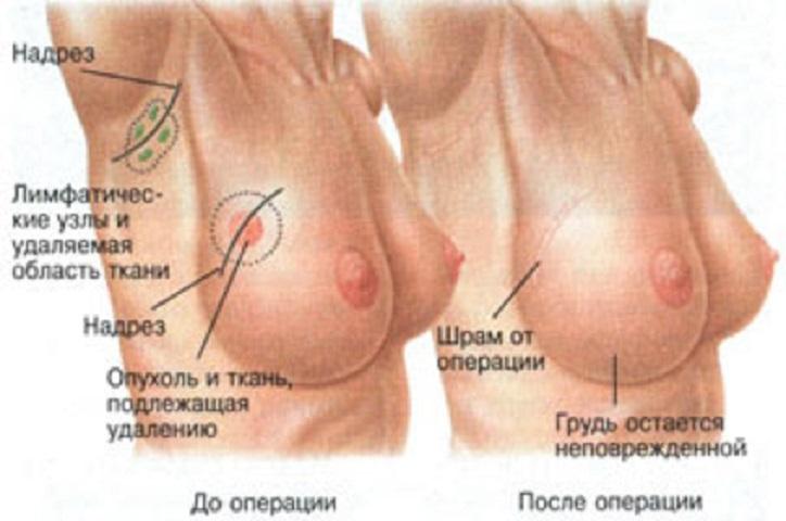 схема проведения лампэктомии