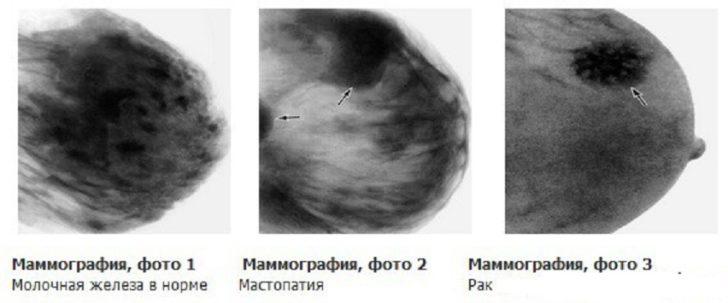 маммограмма молочной железы