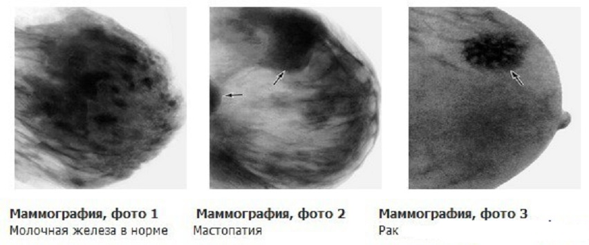 Маммография в екатеринбурге где сделать цены
