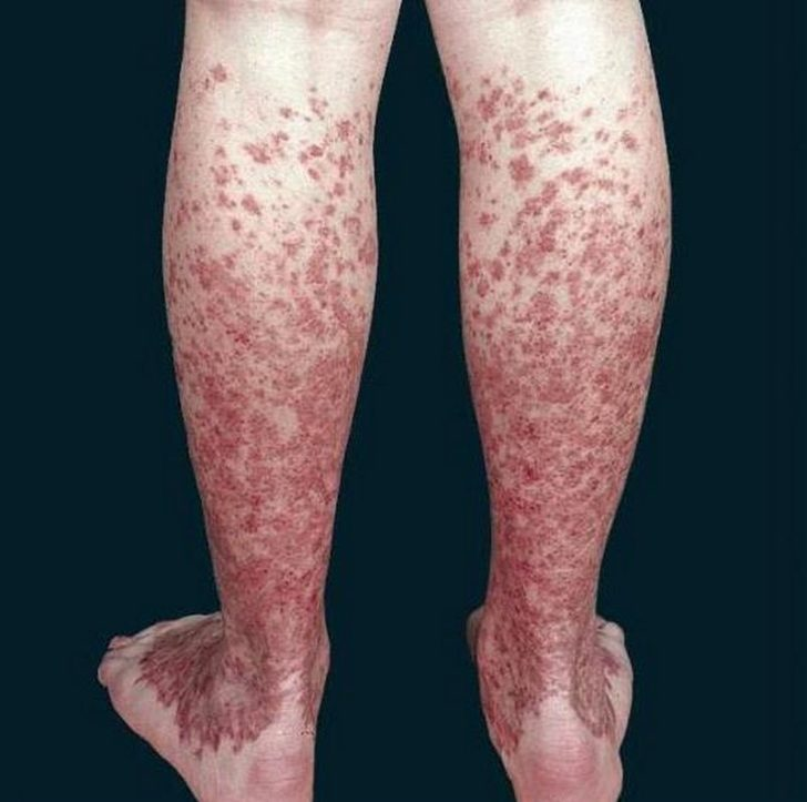 Ноги больного хронической пигментной пурпурой