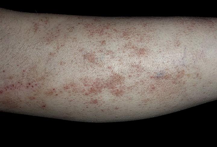 Нога больного пигментной пурпурой