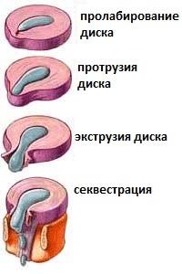 Схема развития грыжи
