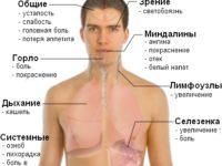Симптомы мононуклеоза на фото