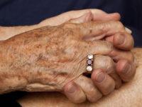 Старческие пигментные пятна на руках