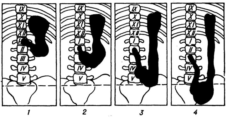 Степени гастроптоза на рентгене