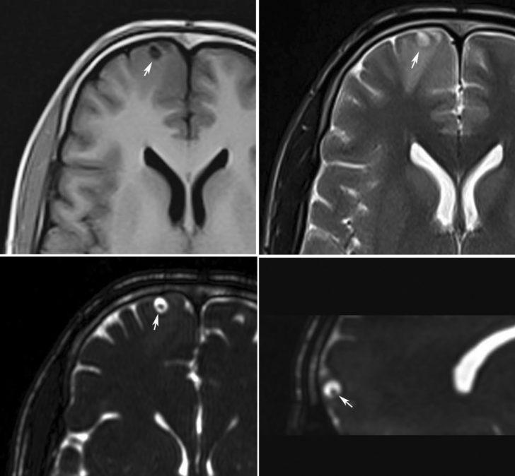 Томографической изображение кистозного арахноидита