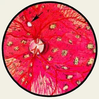 Туберкулёзный хориоретинит