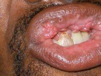 Вирус папилломы во рту