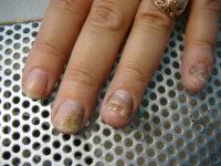 Запущенная стадия грибка ногтей на руках