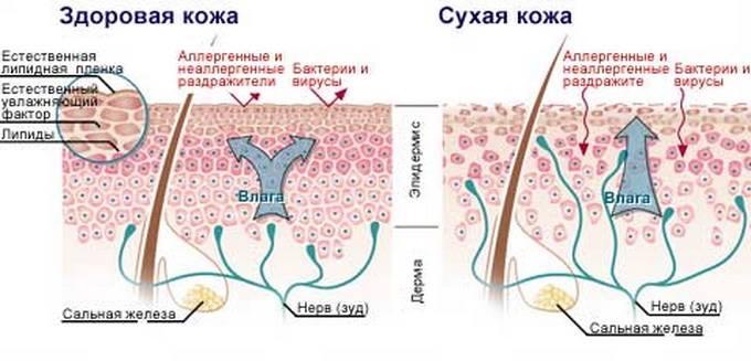 Схематическое изображение здоровой и сухой кожи