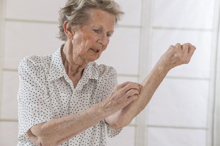 Пожилая женщина чешет руку