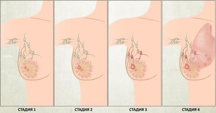 Схема развития рака молочной железы по стадиям