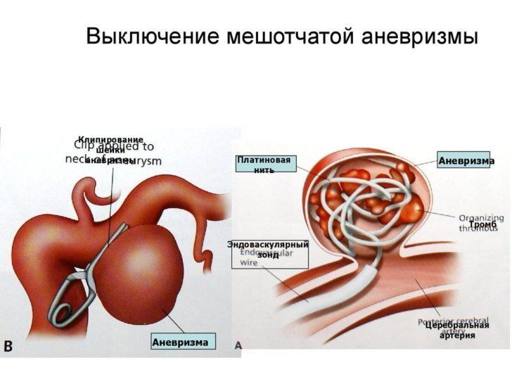 Аневризма сосуда мозга