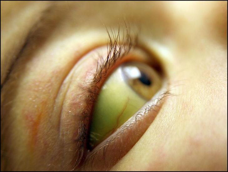 Жёлтые склеры и кожные покровы у больного гепатитом Е