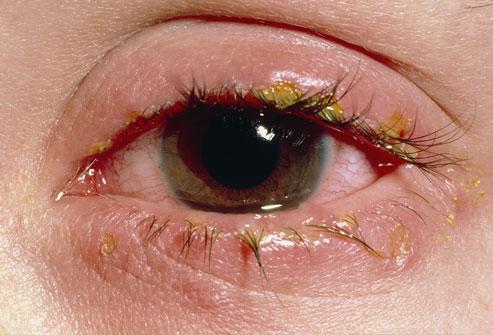 Глазо-железистый вид железистой формы листериоза