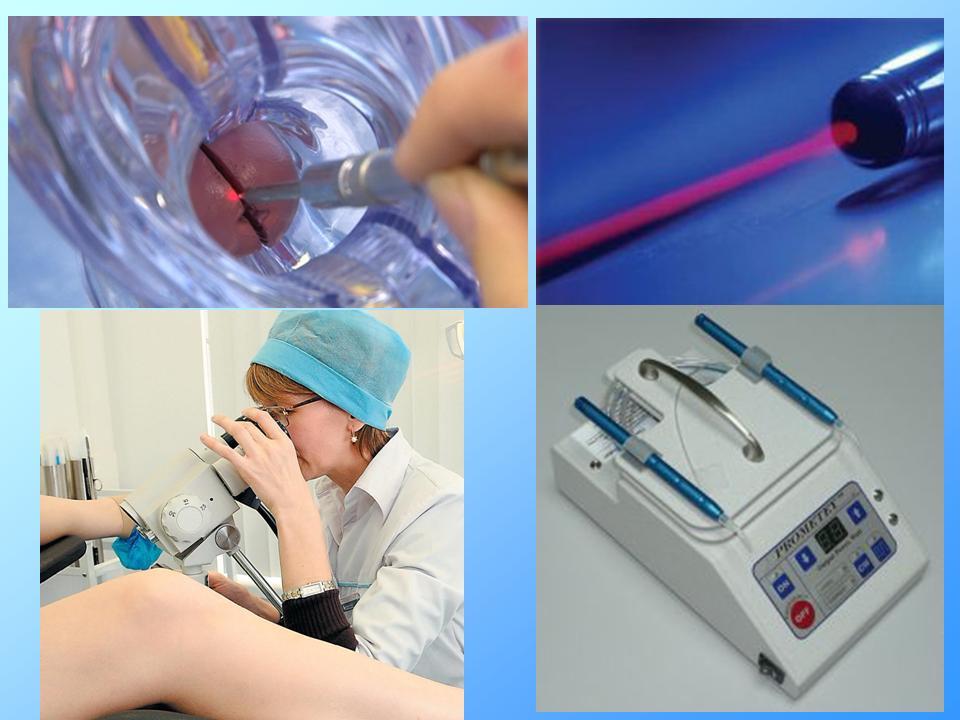 Лейкоплакия шейки матки лечение лазером стоимость