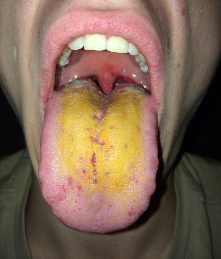 Ярко-жёлтый налёт на языке