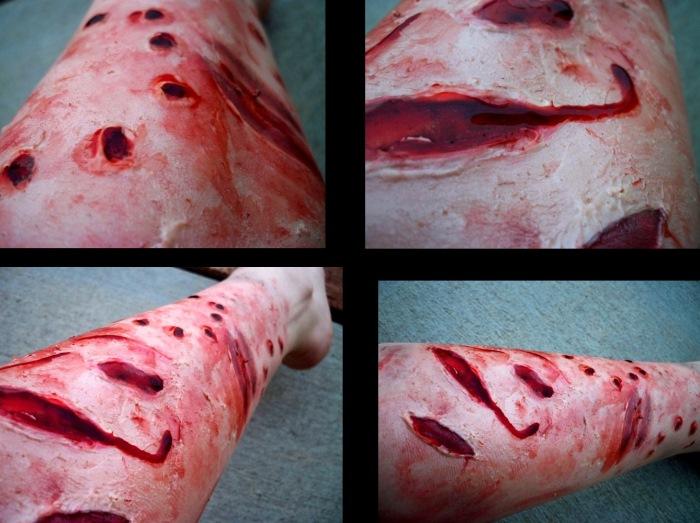 Рваные раны от укуса собаки