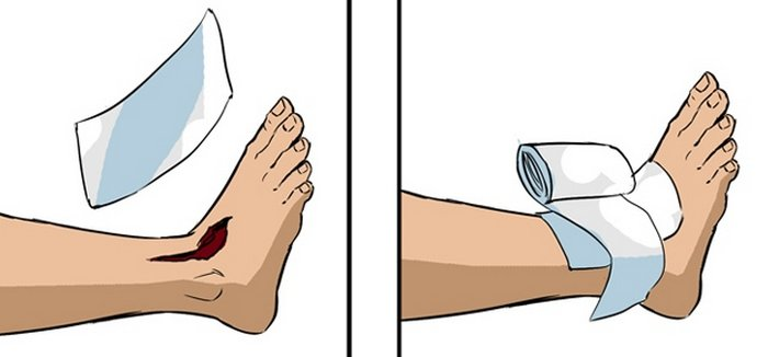 Наложение повязки на рану