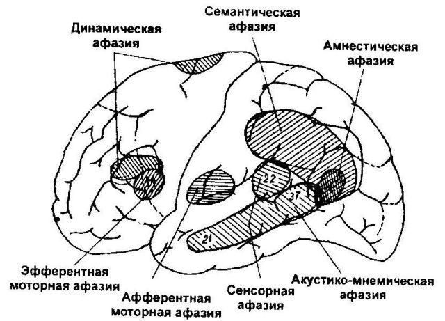 Отделы мозга, отвечающие за восприятие речи