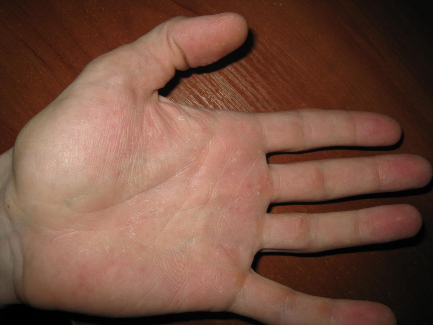 Что делать если чешется кожа и шелушится