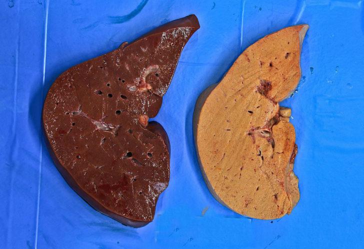 Печень при алкогольном гепатите