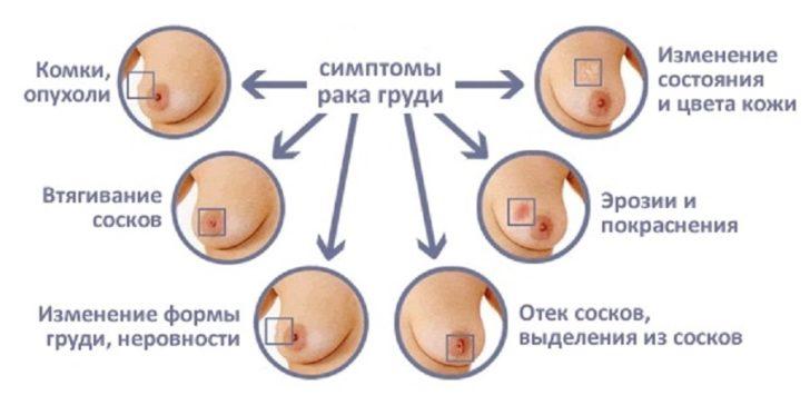 Схема симптомов рака молочной железы