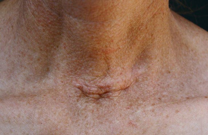 Шрам после операции на щитовидной железе