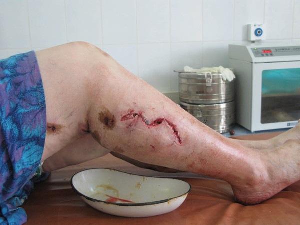 Укушенная рана ноги