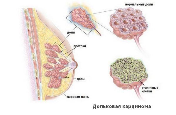 Схема строения молочной железы с дольковым раком