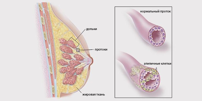 Схема строения молочной железы с инвазивно-протоковой опухолью